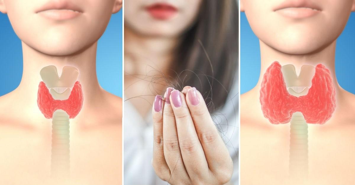 Enfermedades de la tiroides que no tienen nada que ver con sentir un bulto en el cuello/ Foto: iStock