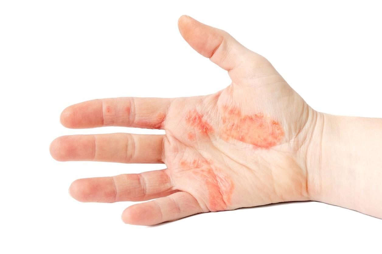 hígado y piel