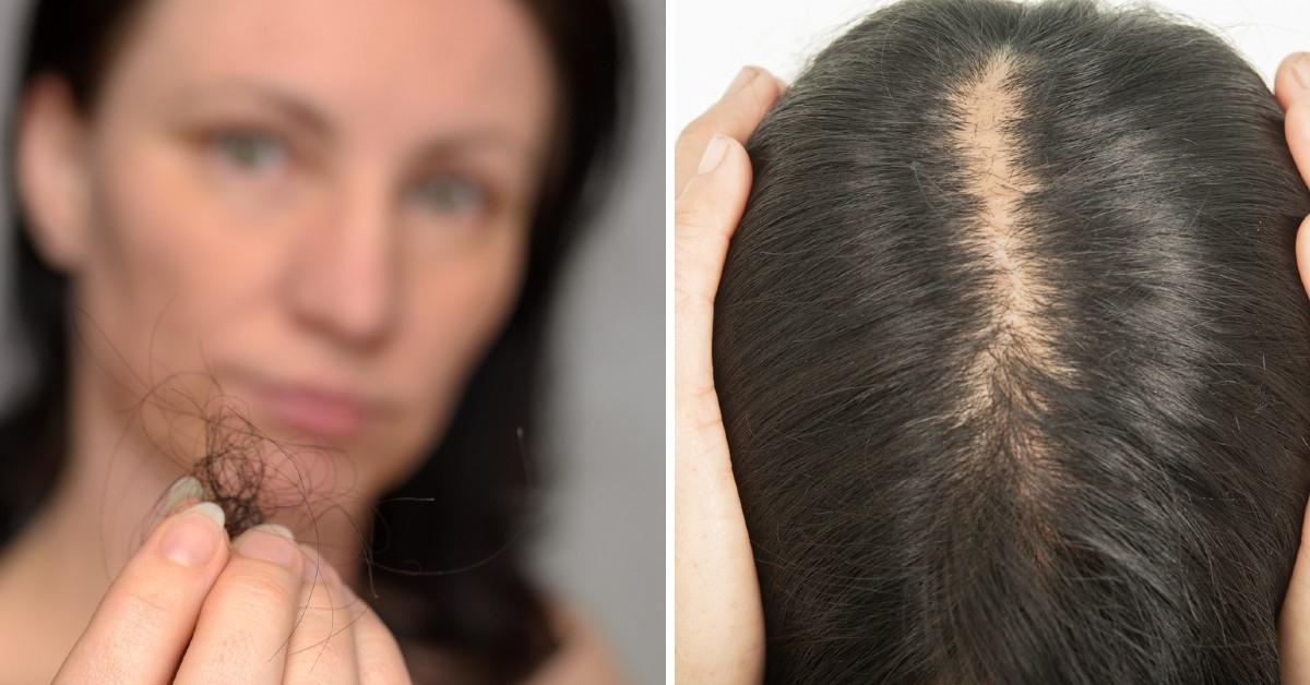 8 hábitos que dañan tu cabello y hacen que se caiga más rápido/ Foto: iStock