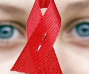 Variación genética detiene el SIDA