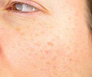 Cómo quitar las manchas en la cara