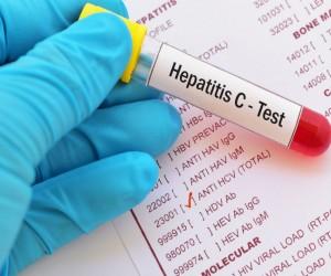 Cómo saber si tengo hepatitis C