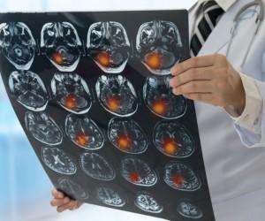 Caso de éxito en IMSS, ¡retiran tumor cerebral con aspirador ultrasónico!