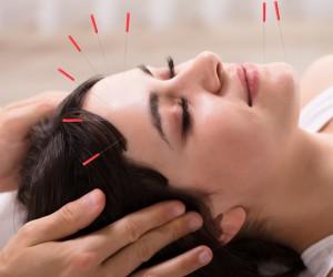 Acupuntura facial para evitar arrugas