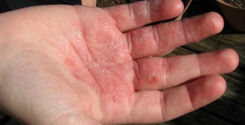 El tratamiento de la dermatitis y la eccema por los medios públicos
