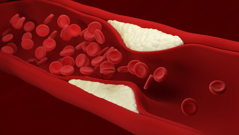 """Los puntos de rubí pueden presentarse debido a alguna falla en nuestro sistema circulatorio, causando una especie de """"varices""""."""