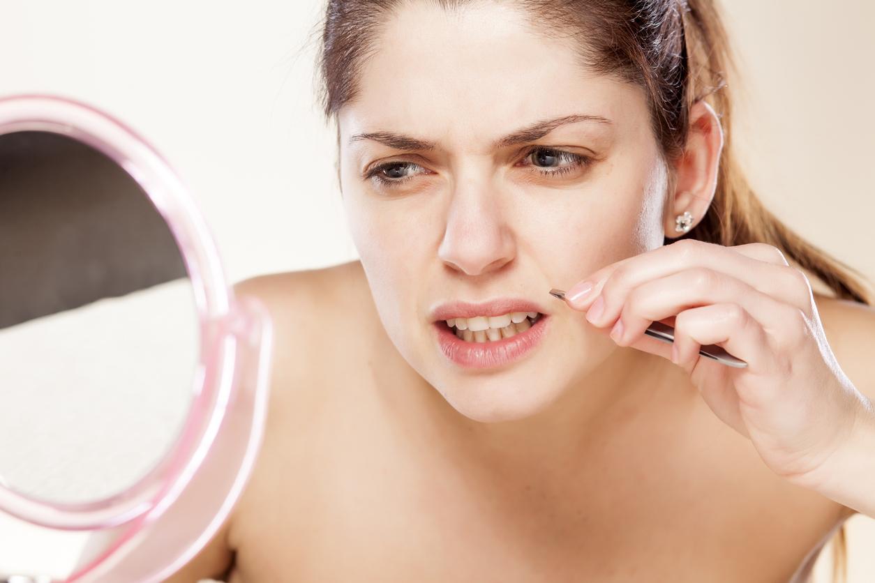Para retirar los puntos de rubí, acude con un dermatólogo, ya que el intentar retirarlos de forma casera puede resultar un poco peligroso.