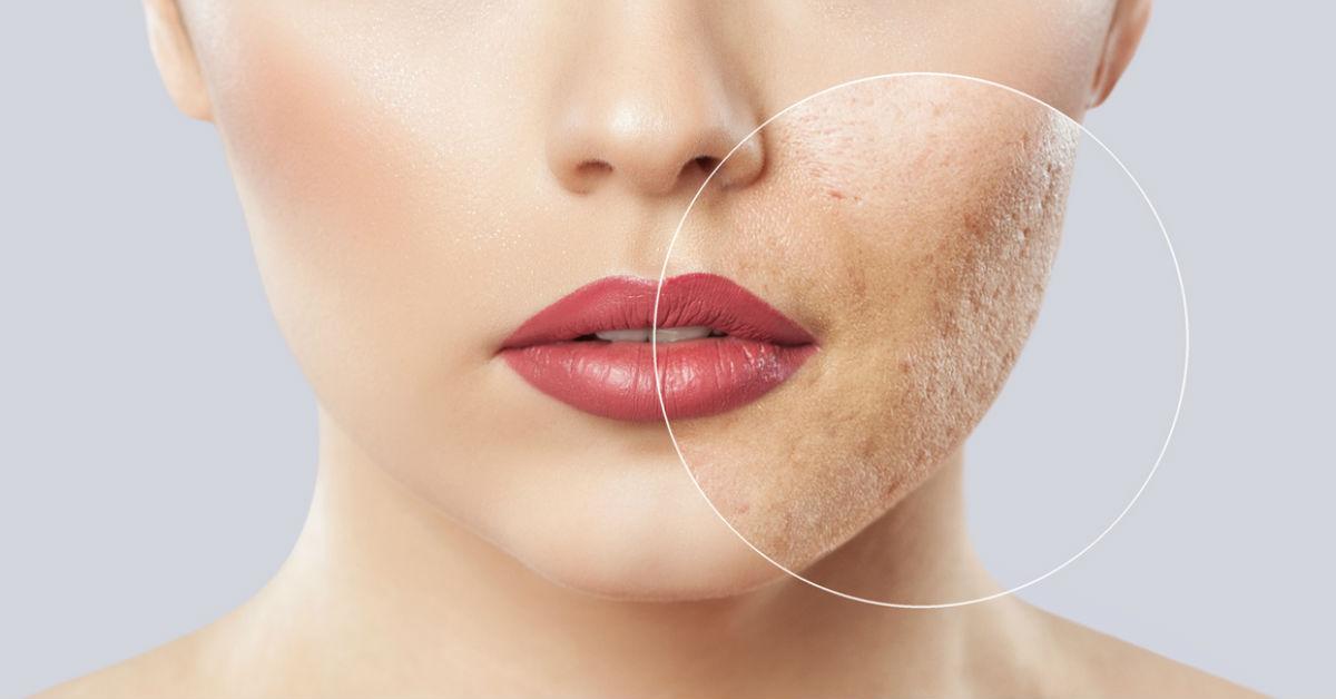 Tener piel grasa puede ser por factores como: la genética, si tus padres o abuelos tienen el cutis graso es muy probable que tú también lo hayas heredado