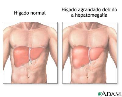Hepatomegalia | Salud180